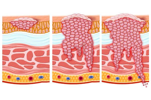 Na figura, é possível observar o desenvolvimento de uma neoplasia maligna.