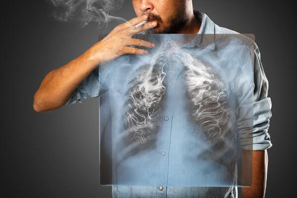 O desenvolvimento do câncer de pulmão apresenta relação direta com o consumo de cigarro.