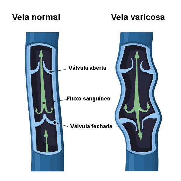 Observe como o sangue flui sem refluxo em veias normais.