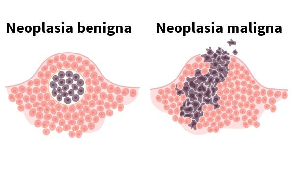 Observe como as neoplasias benignas apresentam-se como uma massa mais delimitada do que as neoplasias malignas.