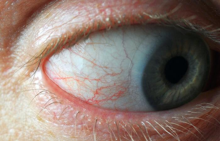 Observe os capilares tecidos do olho humano.