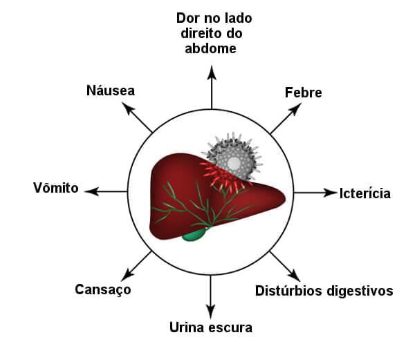 Observe alguns sintomas da hepatite A.