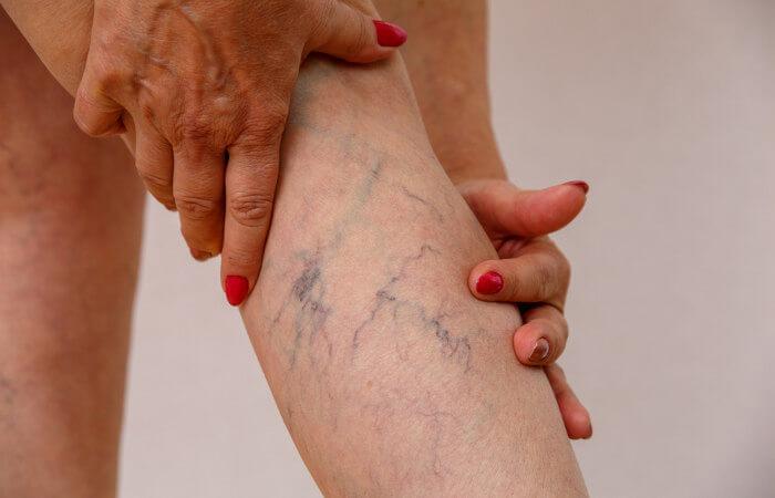 As varizes são veias tortuosas e dilatadas que podem ser vistas em várias partes do corpo.