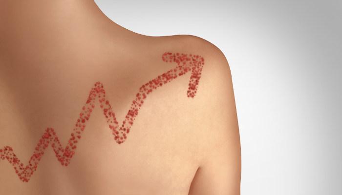 O aumento de casos de sarampo está relacionado, entre outros fatores, com a não vacinação.