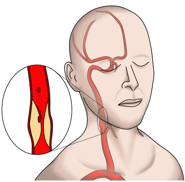 As carótidas garantem o suprimento de sangue para o cérebro, e a formação de placas de ateroma (placas de gordura e outras substâncias) pode desencadear o acidente vascular cerebral.