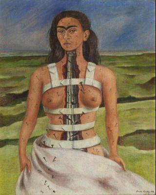 Frida retratava suas próprias dores e problemas de saúde em suas telas. [6]