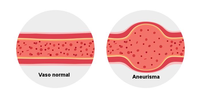 Observe no esquema como ocorre o aneurisma.