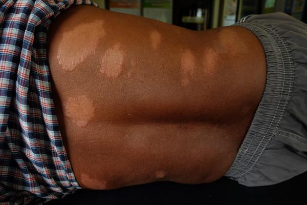 Na hanseníase, observa-se a formação de manchas na pele com a sensibilidade alterada.
