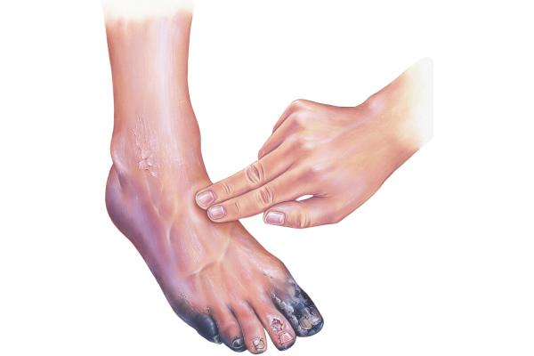 Na gangrena, observa-se alteração da cor da pele e mudança na sensibilidade local.