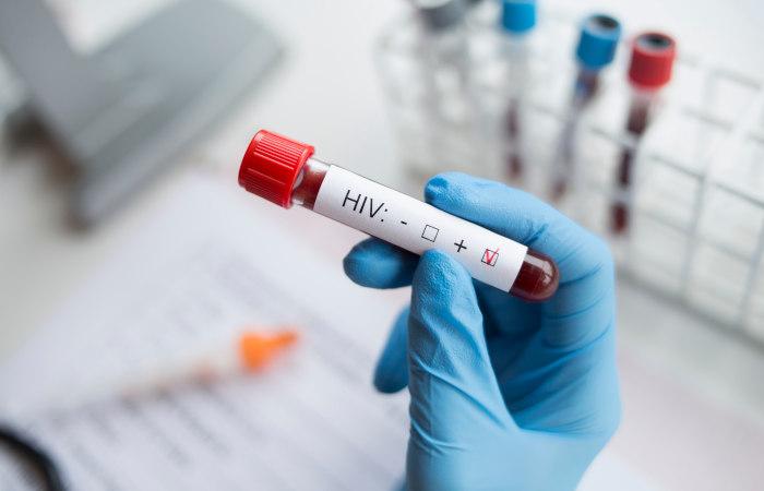 Apesar de a infecção por HIV não ter cura, o tratamento permite que o indivíduo apresente uma vida praticamente normal.