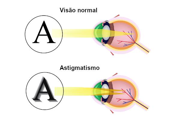 Observe como é formada a imagem em uma pessoa com a visão normal e em uma pessoa que apresenta astigmatismo.