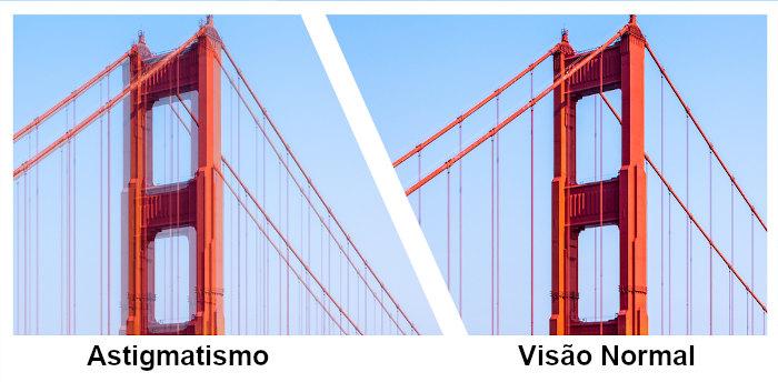 Observe a figura e veja como é a visão de uma pessoa com astigmatismo.