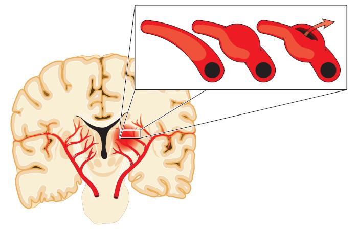 No aneurisma cerebral, temos o acometimento de artérias intracranianas.