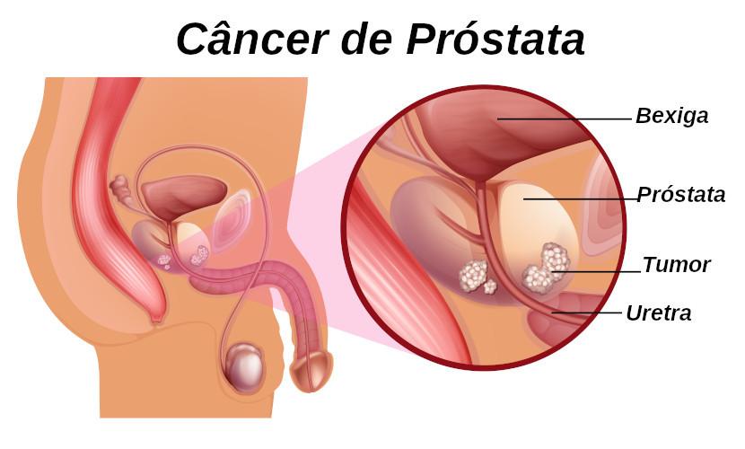 O câncer de próstata é mais comum em homens da terceira idade.