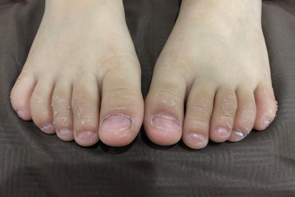 A descamação periungueal é um dos sintomas observados na doença de Kawasaki.