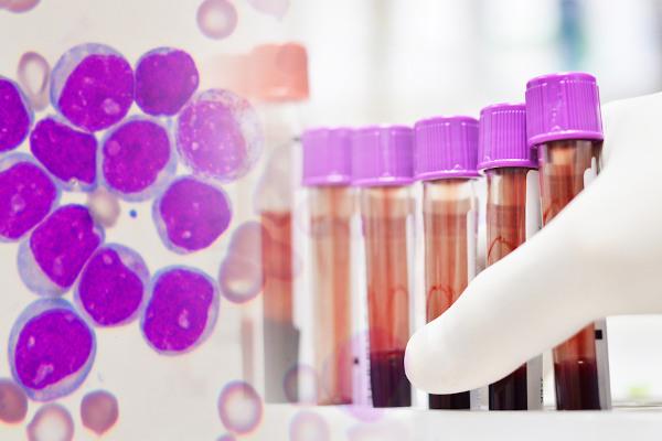 A leucemia é causada por uma proliferação exagerada dos glóbulos brancos.