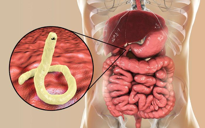 A ancilostomíase é desencadeada por nematódeos parasitas que se fixam no intestino delgado.