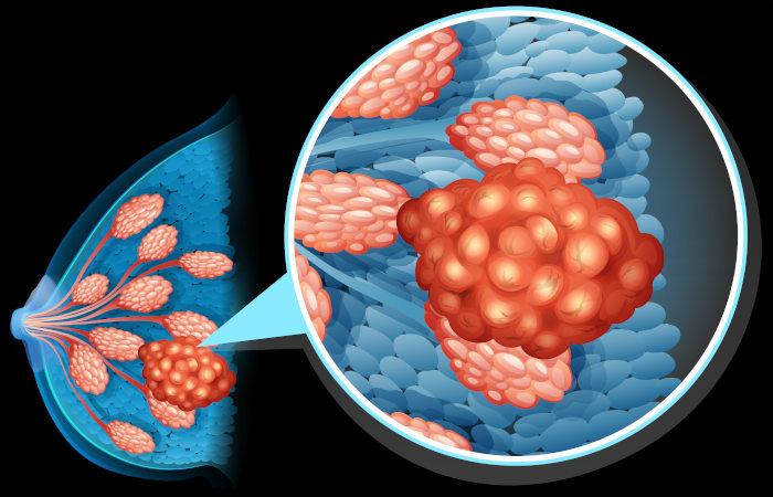 O câncer de mama apresenta como sintoma o surgimento de nódulos na região da mama.