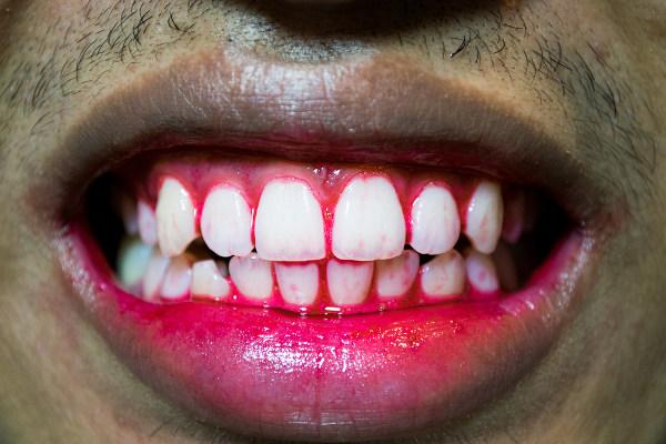 O escorbuto pode provocar hemorragia nas gengivas.