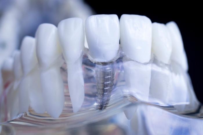 Pino de prótese dentária feito com titânio, biocompatível com o organismo, além de ter baixo potencial alérgico.