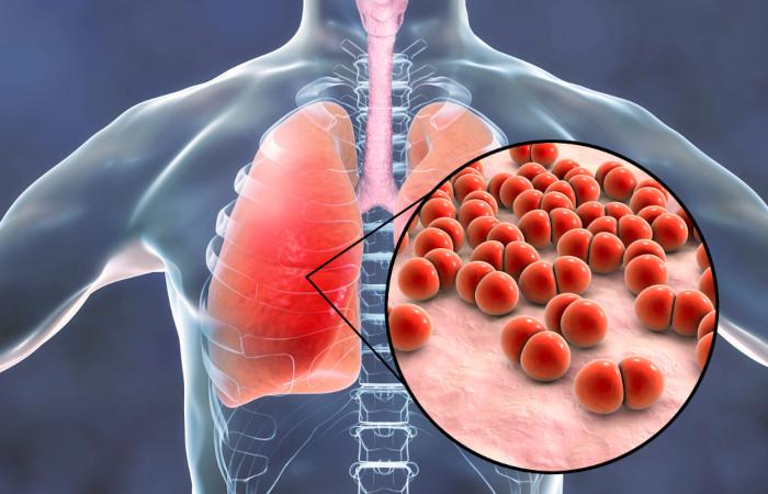 A pneumonia é uma doença que afeta os pulmões e pode ser causada por diferentes agentes, como bactérias.