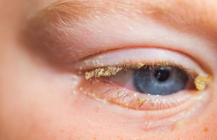 Além dos olhos vermelhos, a conjuntivite pode causar a produção de secreção amarelada ou esbranquiçada.
