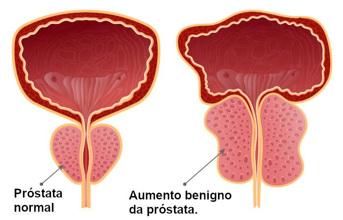 O aumento da próstata pode comprimir a uretra prostática.