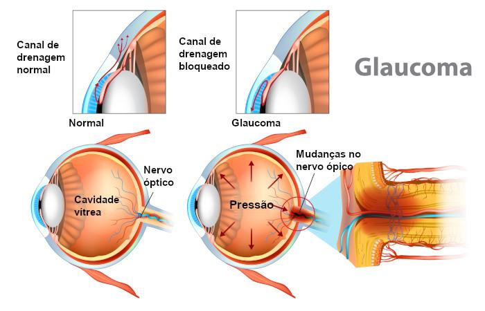 O aumento da pressão intraocular está relacionado ao desenvolvimento de glaucoma.