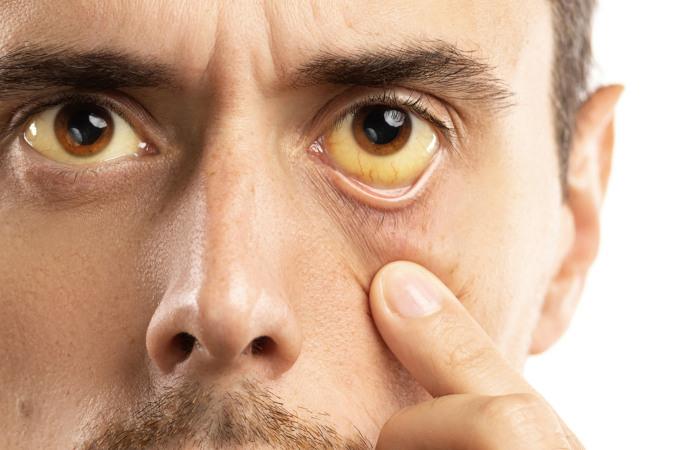 Na icterícia, observa-se o amarelamento de pele e mucosas.