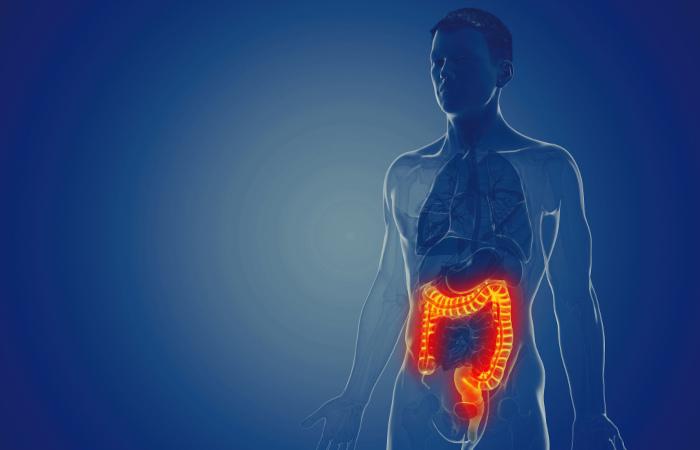 Dor abdominal, urgência evacuatória e diarreia com sangue são alguns dos sintomas da retocolite ulcerativa, uma doença que afeta o intestino grosso.