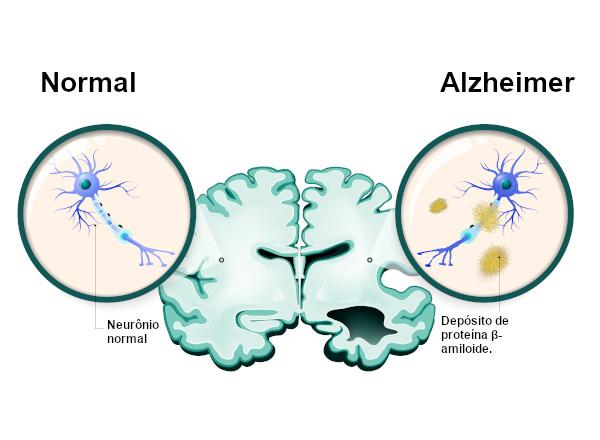 Na doença de Alzheimer, observa-se o surgimento de placas senis decorrentes do depósito de proteína β-amiloide.