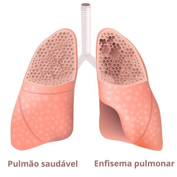 O enfisema pulmonar desencadeia sintomas como dificuldade respiratória.