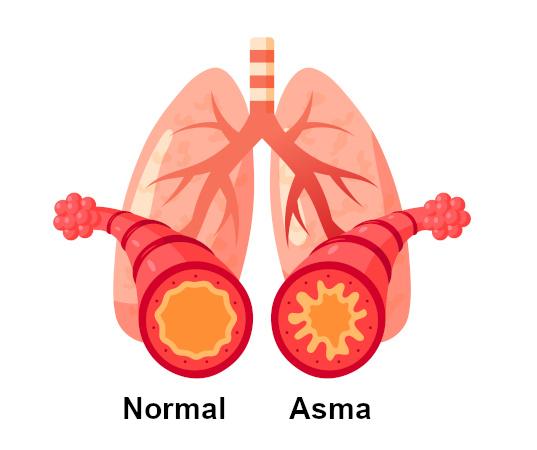 Na asma observa-se uma obstrução do fluxo aéreo.