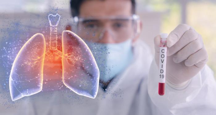 A Covid-19 é causada por um coronavírus que também provoca síndrome respiratória aguda grave.