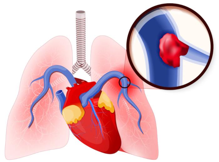 Na embolia pulmonar, há envolvimento de trombos, diferentemente da embolia gasosa.