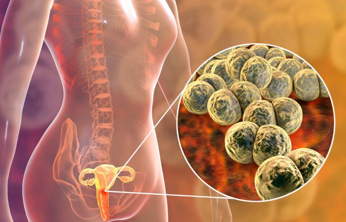 Nas mulheres, a gonorreia é, muitas vezes, assintomática.