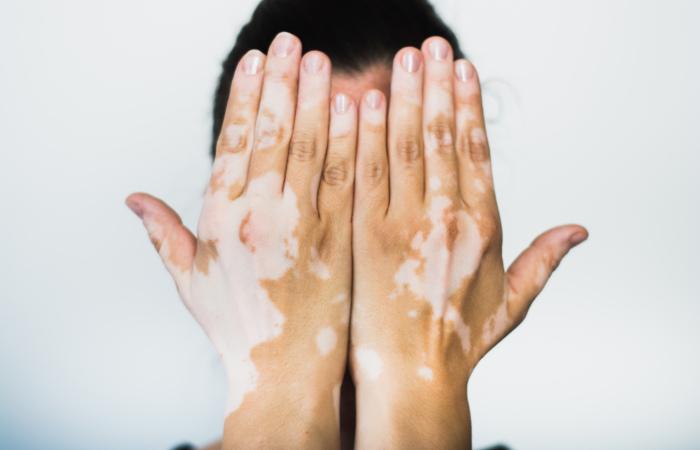 Muitas pessoas possuem vergonha das manchas que apresentam no corpo, o que provoca uma grande redução da qualidade de vida desses indivíduos.
