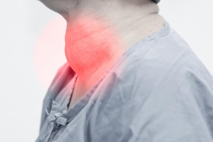 Paciente com bócio, que causa um inchaço na região da glândula tireoide.