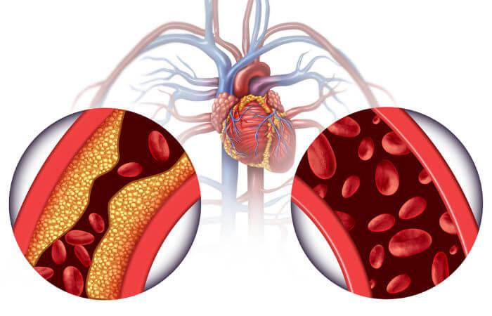 A aterosclerose reduz o calibre das artérias e está relacionada com a cardiopatia isquêmica.