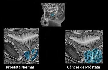 Observe a diferença entre uma próstata normal e com câncer *