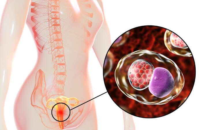 A bactéria Chlamydia trachomatis é o agente causador da clamídia.