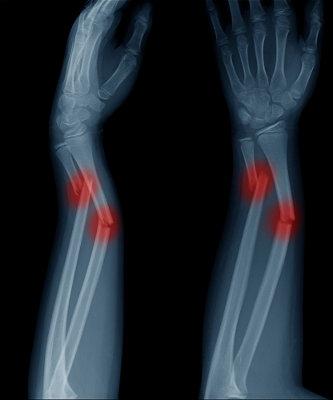 As fraturas ocorrem quando o osso quebra-se e apresenta sua continuidade interrompida