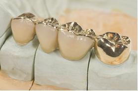 As obturações dentárias são feitas de amálgama