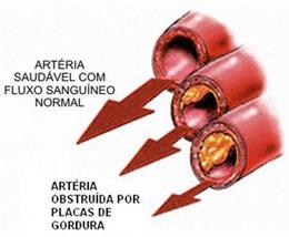 Na arteriosclesose, o fluxo sanguíneo que passa pela artéria fica obstruído