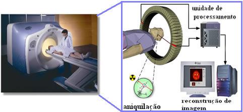 Esquema da tomografia por emissões de pósitron