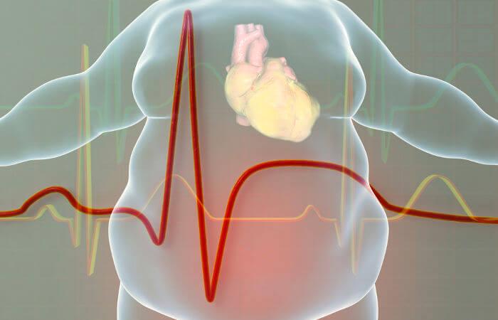 A obesidade é um fator de risco para o infarto, portanto, controlar a alimentação e o ganho de peso é uma forma de prevenir o problema.