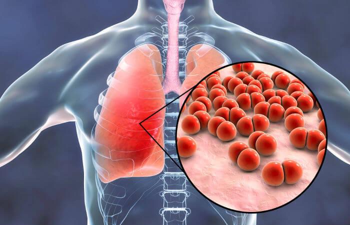 A pneumonia destaca-se como a principal causa de morte entre as infecções respiratórias.