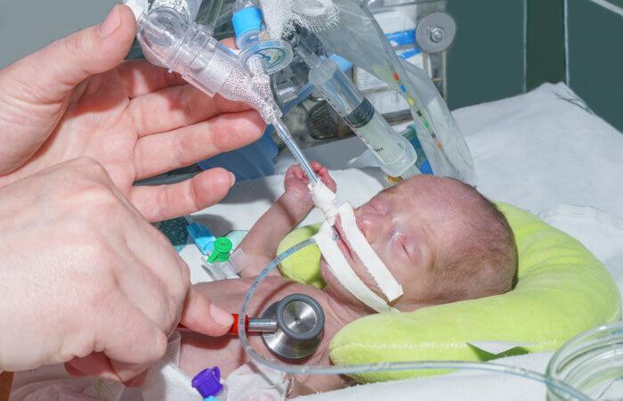 Os recém-nascidos prematuros apresentam uma maior chance de desenvolver uma sepse.