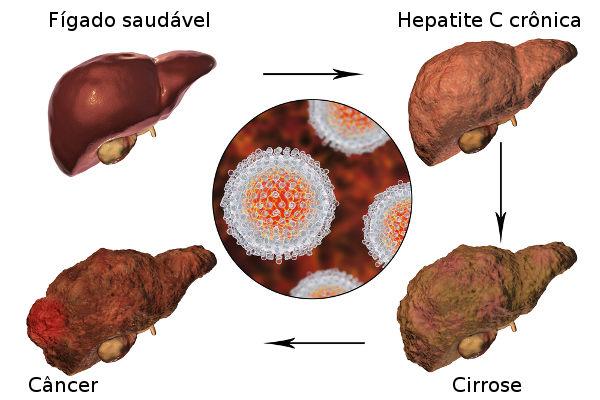 A maioria dos casos de hepatite C evolui para o quadro crônico.
