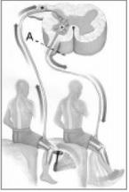 A figura representa um esquema de reflexo patelar